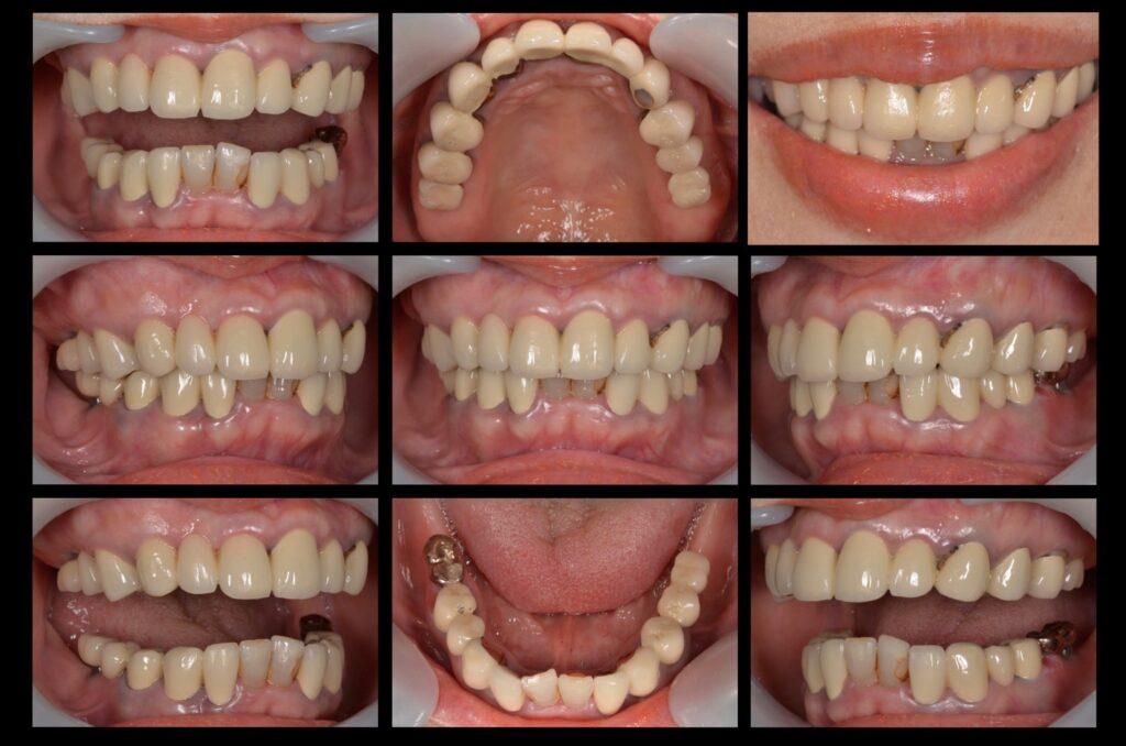 自分の歯が嫌い【インプラント・かみ合わせ・セラミック治療例】60代女性 2017222