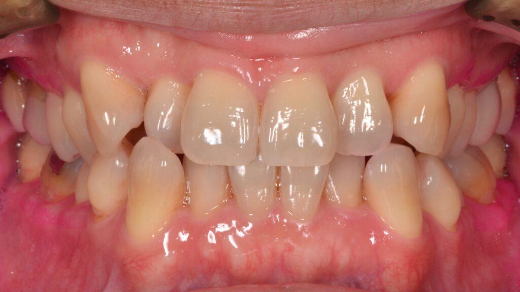 前歯の歯並びを治したい【矯正治療例】50代男性 20190821