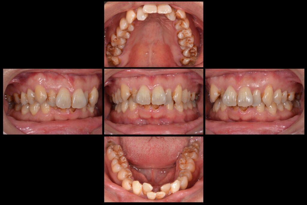 歯並びを治したい【矯正治療例】40代男性 20160107