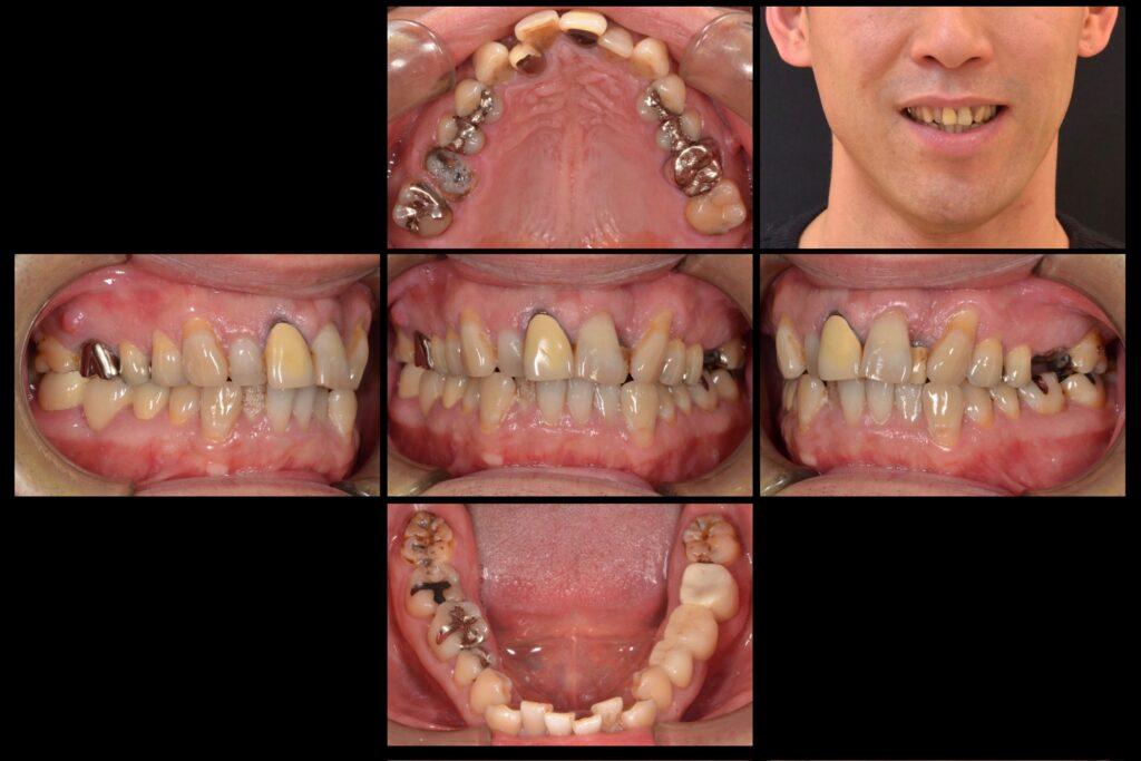 虫歯と歯並びを治したい【矯正治療例】40代男性 20200303