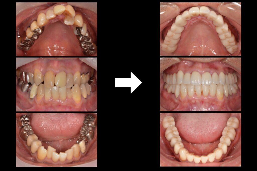 歯並びを治して白い歯にしたい【矯正治療例】40代男性 20131119
