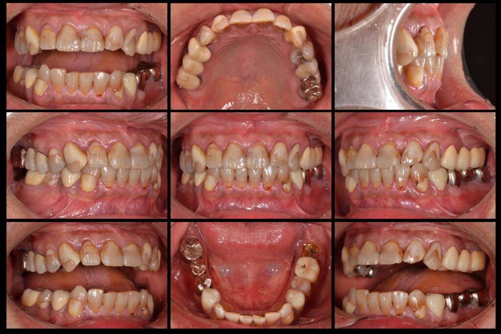 奥歯が噛めない、歯を白くしたい【インプラント・かみ合わせ・セラミック治療例】40代男性 20180104