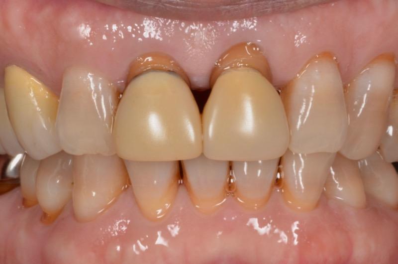 前歯をセラミックで治したい【セラミック治療例】60代男性 20210415