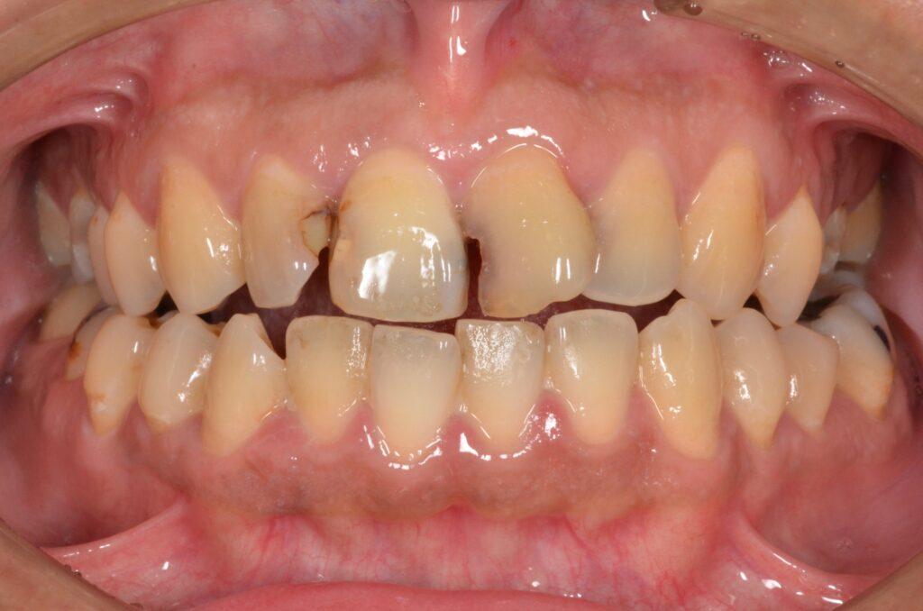 仮歯をその日のうちに 20210802
