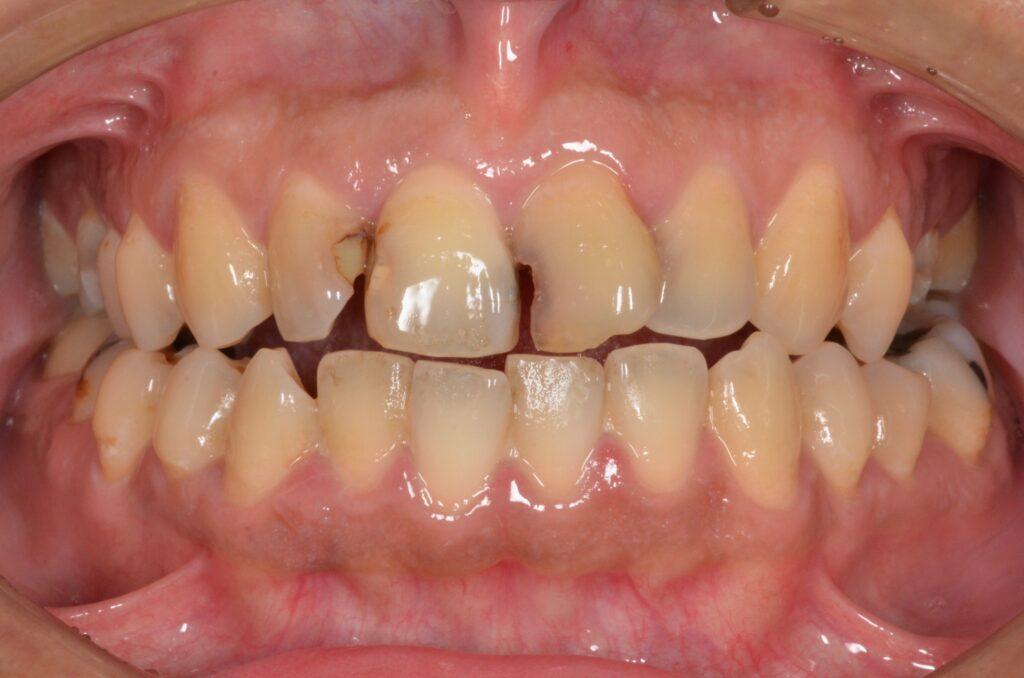 虫歯を治したい【セラミック治療例】40代男性 20210910